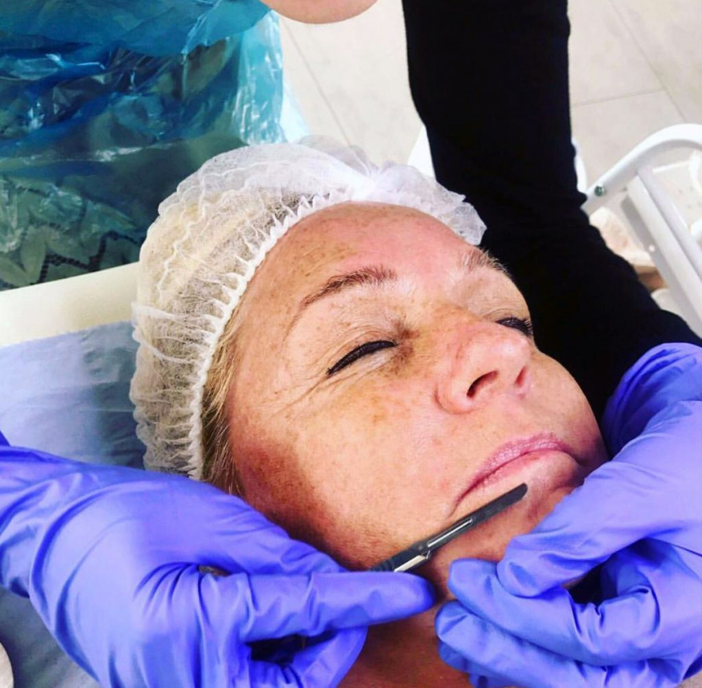 Dermaplaning close up
